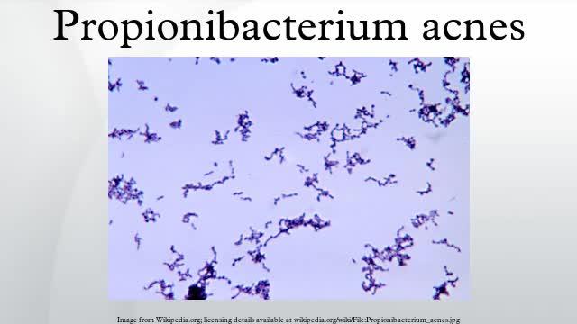 Vi khuẩn Propioibacterium Acnes 1