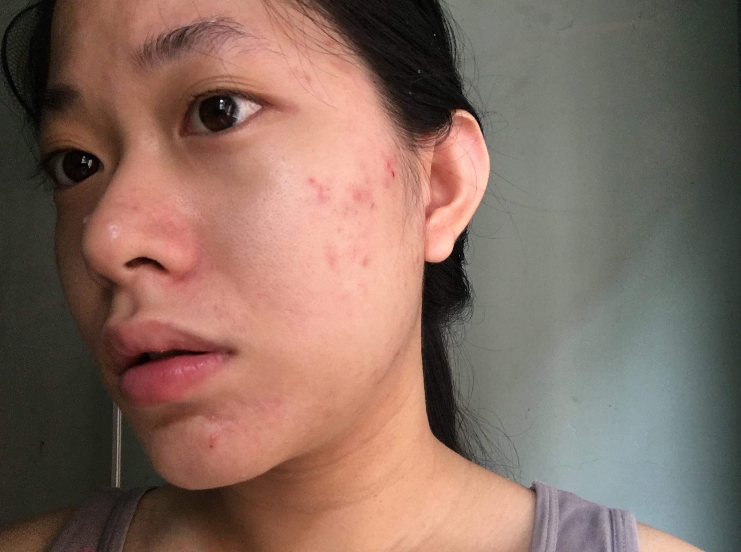 |Review| Mụn viêm được ngăn chặn, xẹp đi sau 7 ngày sử dụng Gel Mụn Sẹo Thâm ♡ Vietlife Skincare Nano ♡ 3