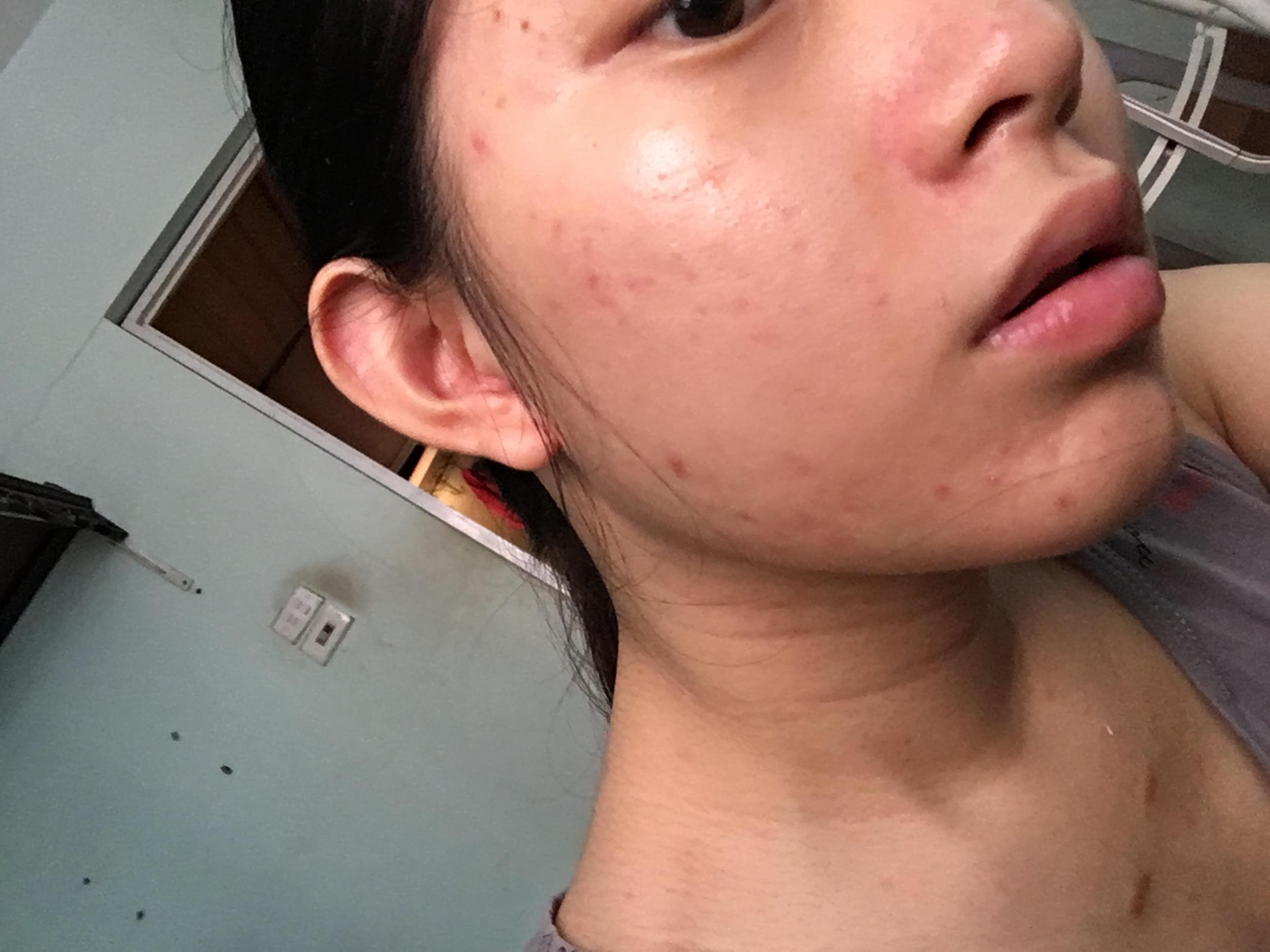 |Review| Mụn viêm được ngăn chặn, xẹp đi sau 7 ngày sử dụng Gel Mụn Sẹo Thâm ♡ Vietlife Skincare Nano ♡ 2