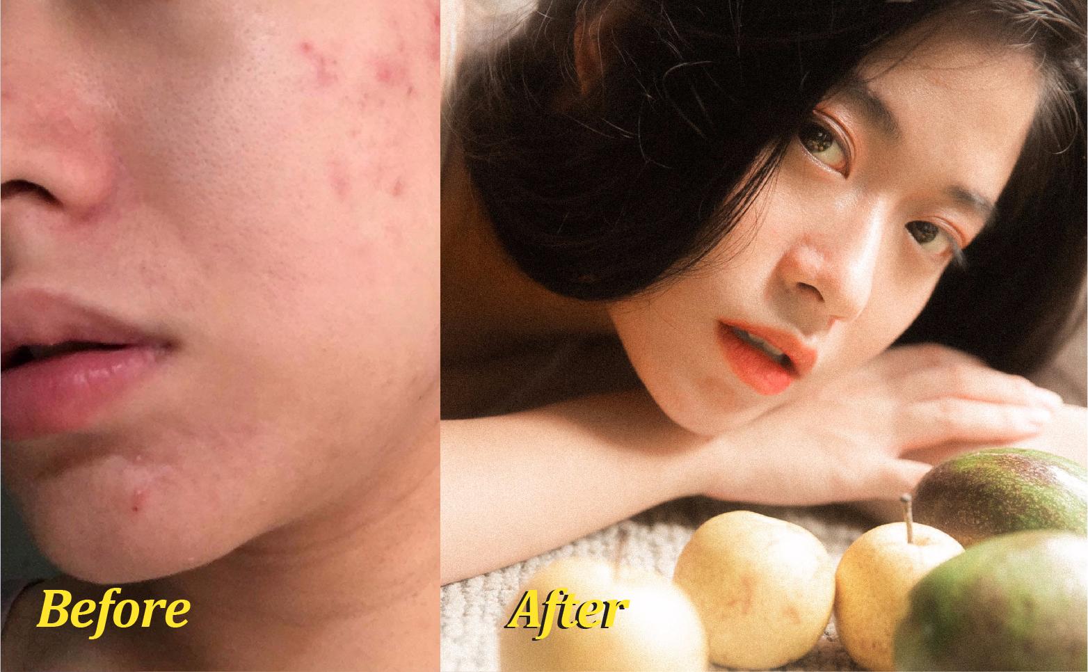 |Review| Mụn viêm được ngăn chặn, xẹp đi sau 7 ngày sử dụng Gel Mụn Sẹo Thâm ♡ Vietlife Skincare Nano ♡ 1