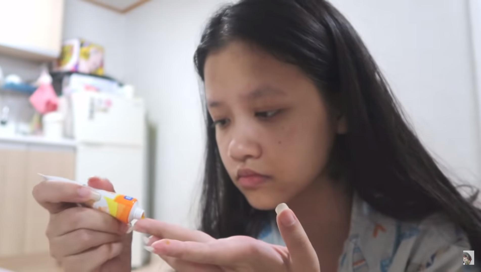 Cách trị mụn thâm của cô nàng hot girl Ly Nguyễn 2