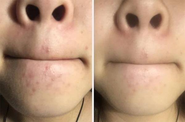 Mụn mọc ở miệng báo hiệu điều gì? 1
