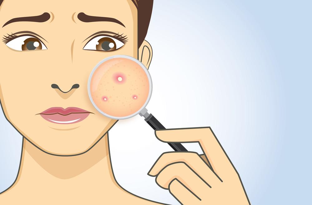 Dẹp mụn ẩn cực đỉnh, xem ngay bí quyết Vietlife Skincare Nano 2
