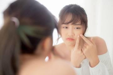 Nguyên nhân cơ bản khiến bạn bị mụn và cách trị mụn ở tuổi dậy thì là gì?