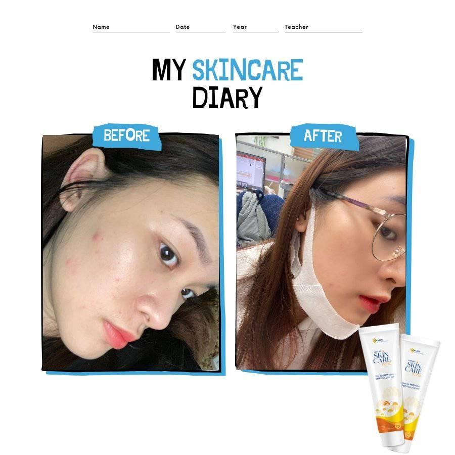 Một số review của các bạn trẻ khắp mọi miền đã thương gửi cho Skincare Nano 1