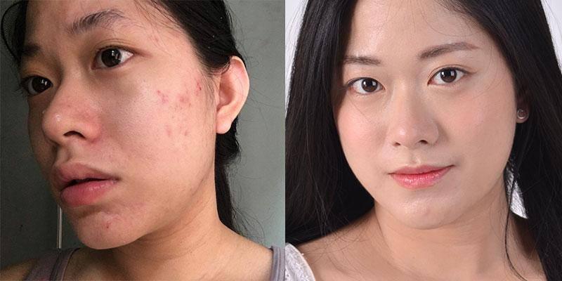 Một số review của các bạn trẻ khắp mọi miền đã thương gửi cho Skincare Nano 2