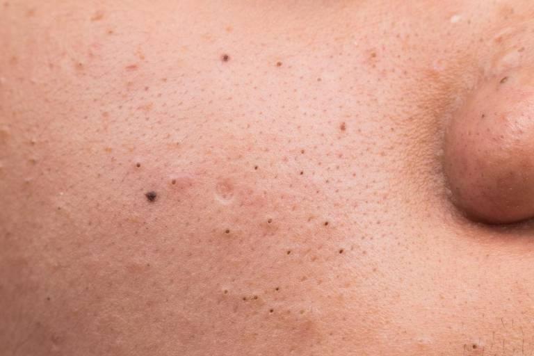 10 cách chữa mụn đầu đen 2 bên má của bạn
