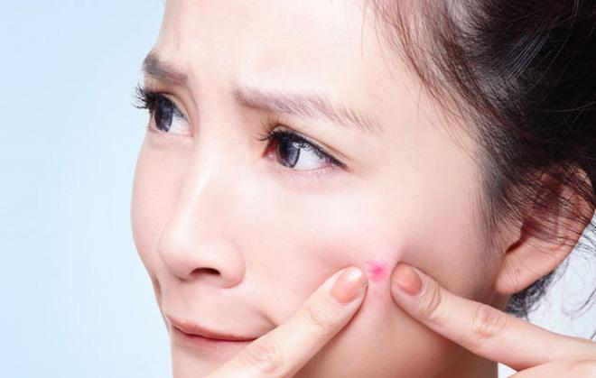 Điều gì có thể gây ra mụn đầu đen trên má của bạn? 1