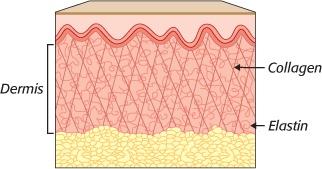 Nguyên nhân nào gây ra sẹo trên khuôn mặt? 1