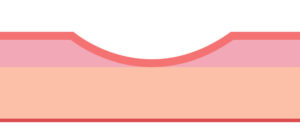 cách trị sẹo lõm trên mặt hiệu quả bạn nhất định phải biết 1