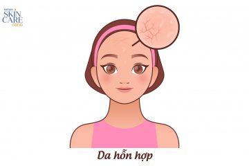 """Bạn đã """"nhận diện"""" đúng loại da mặt của mình hay chưa?"""