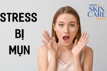 Stress khiến bạn bị mụn như thế nào?