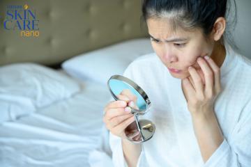Mụn – Vấn đề hoàn toàn bình thường của da
